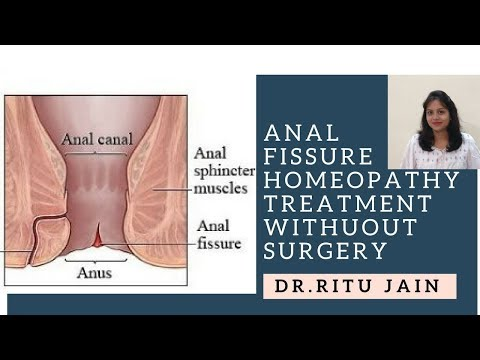 Do I Have Hemorrhoids or Anal Fissure? Ask a Proctologist