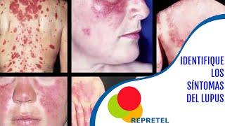 Identifique los síntomas del lupus