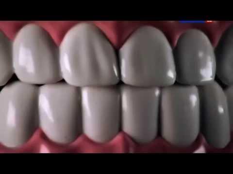 Наука 2.0 Зубы. Стоматология (Большой скачок) - Cмотреть видео онлайн с youtube, скачать бесплатно с ютуба