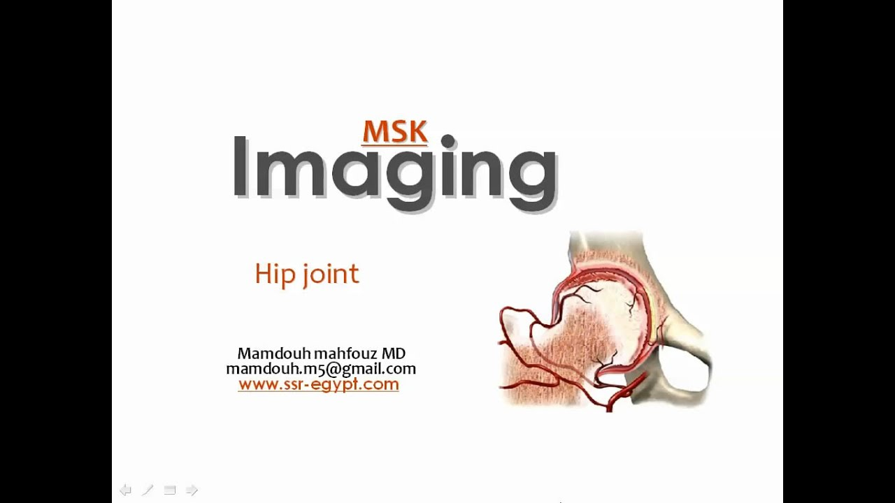 Imaging Of The Hip Joint Dre 6 Dr Mamdouh Mahfouz Youtube