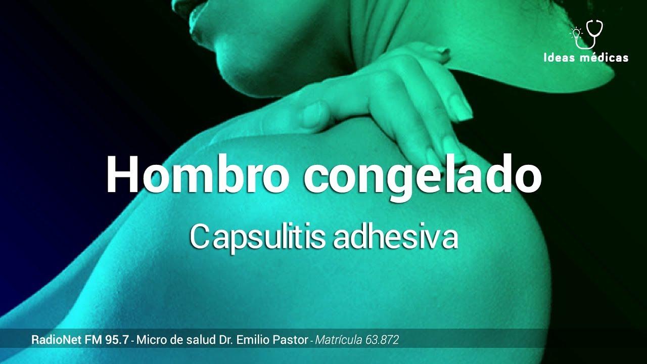 Capsulitis hombro