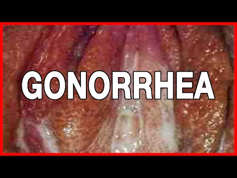 Symptoms and Early Signs of Gonorrhea in Both Sexes