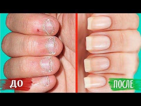 Как быстро вырастить ногти за неделю