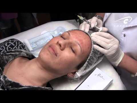 Нужна ли маска после мезотерапии?
