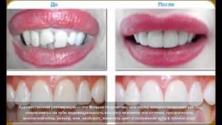 Художественная реставрация зубов(Подробнее о художественной реставрации зубов: http://zubolel.ru/zubnaya-restavraciya-xudozhestvennaya-restavraciya-zubov/, 2014-09-23T21:21:35.000Z)