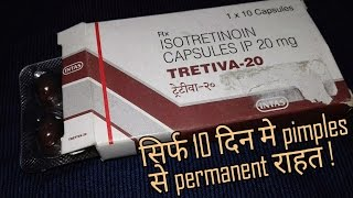Acne Removal - Tretiva - 20 (Isotretinoin) Capsules | Treatment For Acne Pimples | Review Hindi