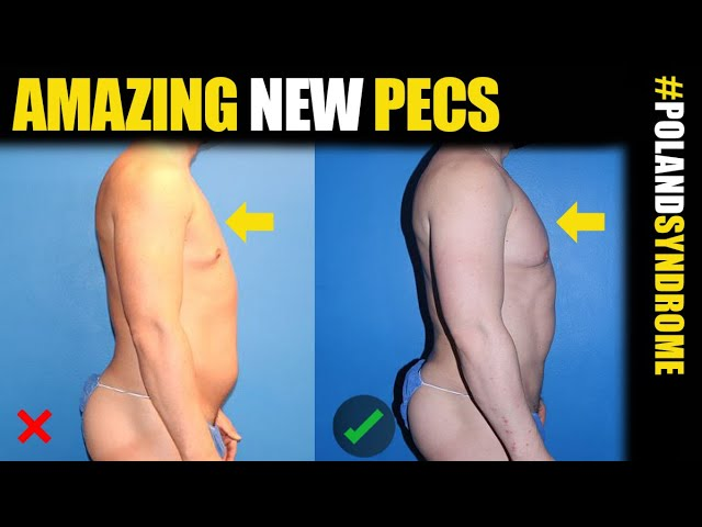 Poland Syndrome Chest Surgery with BodyBanking in Chicago, LA and NYC