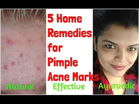 Pimple Marks Scars Removal At Home Naturally Home Remedy For Acne