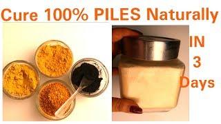 PILES Treatment 100%, सिर्फ 3 दिन में खुनी बवासीर का उपचार, Bleeding PILES Treatment, घरेलु नुस्खा, thumbnail