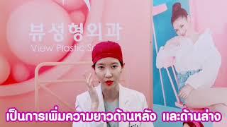 [Doctor Expert] คุณหมอคังแฮวอน แนะนำเทคนิคการผ่าตัดเปิดหัวตา เปิดหางตาและหางตาล่างl โรงพยาบาลวิว