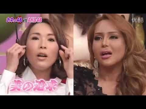 20120119 AKB48 VS オネエ48 美容整形 バッカルファット