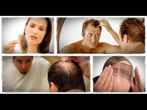 chute de cheveux que faire protocole perte de cheveux le programme de reconstruction. Black Bedroom Furniture Sets. Home Design Ideas