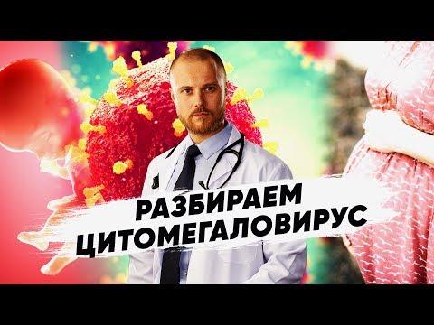 Вирус герпеса 5 типа - Как лечить цитомегаловирус. Обнаружили цитомегаловирус что делать?