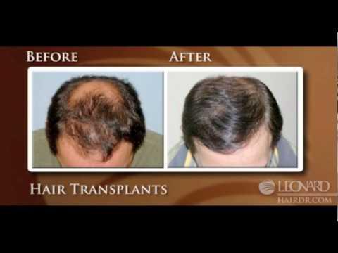 Hair Loss Expert in Rhode Island and Massachusetts -- Dr. Leonard
