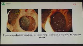 35 Клинический случай Гигантский дивертикул 12 перстной кишки