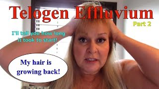 Telogen Effluvium part 2  Regrowth it's happening!