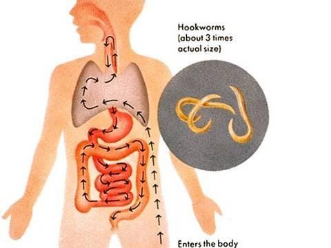 Top 10 Weirdest Diseases