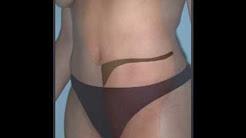 Ultrasonic Liposuction Surgery in Dallas