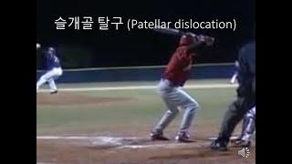 야구의 타자 부상 Baseball batting inj…