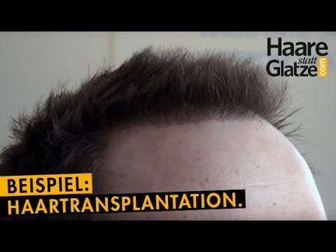 haartransplantation videobeispiel vorher nachher youtube