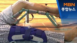 인공관절 수명 늘리는 로봇수술 한해 2천 건뿐…도입 더…
