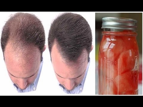 how-to-prevent-and-stop-hair-loss-in-natural-way
