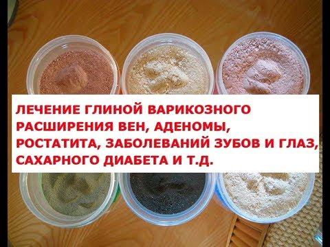 Рецепты лечения глиной при  варикозном расширении вен, артрите, отложении солей, межпозвоночной грыж
