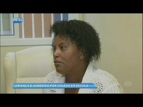 Vítima de racismo na escola, criança é agredida e vai parar no hospital