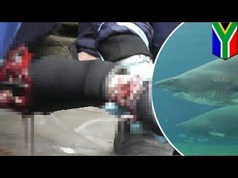 Беременная акула чуть не отгрызла руку ныряльщику