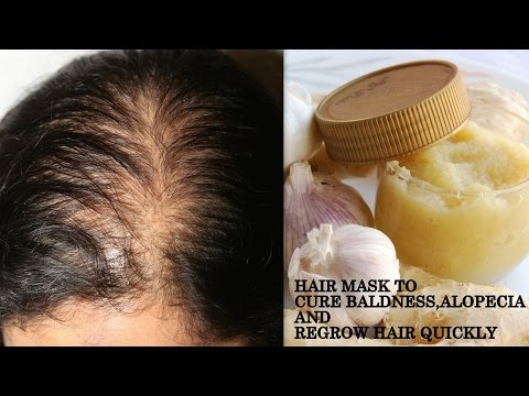 पावरफुल हेयर मास्क | How to Cure BALDNESS FOR MEN AND WOMEN | Regrow Hair Naturally Quickly at home