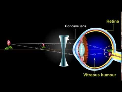 what is myopia??? (Short Sightedness)