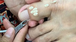 HOW TO CUT THÏCK TOENAILS - Toenail Cleaning Satisfying #247