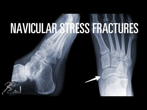 How can you quickly recover from a navicular stress fracture?