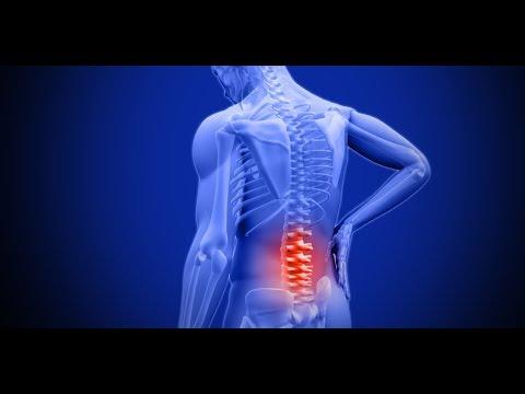 कमर दर्द से छुटकारा पाने के घरेलू उपाय | Home remedies for getting rid of back pain