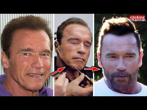 Incredible transformation of Arnold Schwarzenegger with PLASTIC SURGERY Along the years Before & Now
