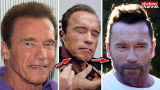 INCREIBLE transformacion de ARNOLD Schwarzenegger con sin CIRUGIA estetica PLASTIC SURGERY CHANGE 16