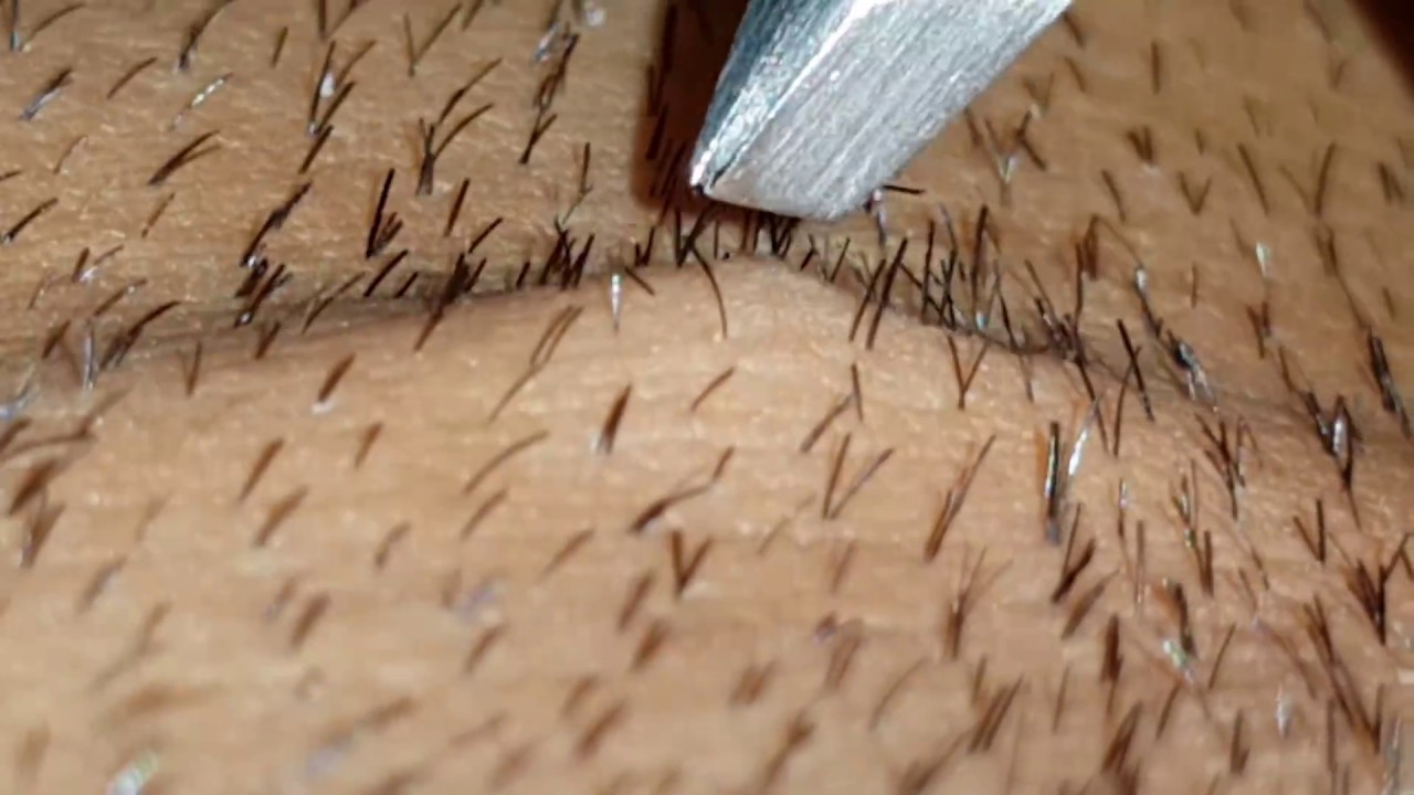 Plucking Tweezing Pili Multigemini Hairs Packed