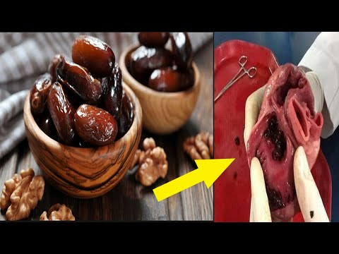 SCIENTISTS CONFIRMED: THIS IS THE WORLD'S NO.1 FOOD AGAINST HEART ATTACK, Hypertension, , Stroke