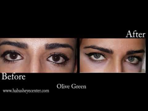 brightocular eye color change olive green by drsalman habash - Eye Color Change Surgery Before And After