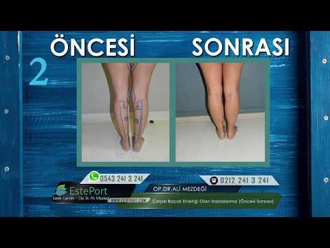 Çarpık Bacak Estetiği Öncesi Sonrası