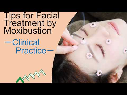 Tips for Facial Treatment by Moxibustion - Clinical Practice -