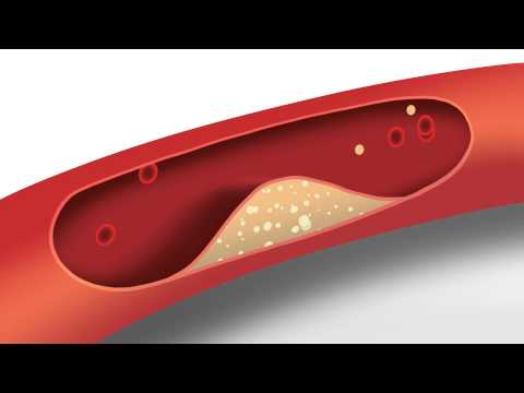 Blood Pressure Animation | Heart disease risk factors