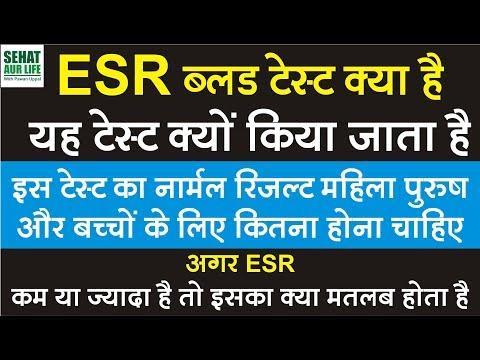 ESR ब्लड टेस्ट क्या है और क्यों किया जाता है नार्मल रिजल्ट कितना होना चाहिए, ESR Normal Range