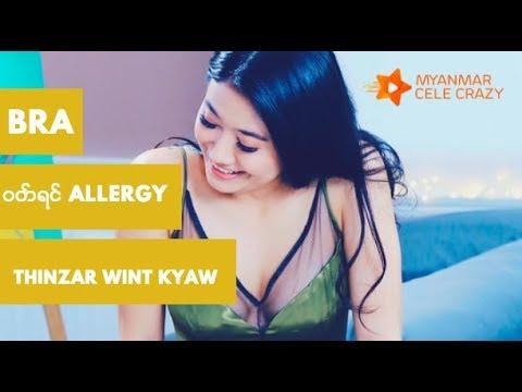 ????????????????????? Allergy ?????? ??????? ?????????????? (Thinzar Wint Kyaw)