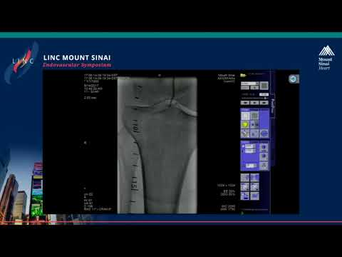 Live Case Presentation #11 MULTILEVEL DISEASE IN CRITICAL LIMB ISCHEMIA
