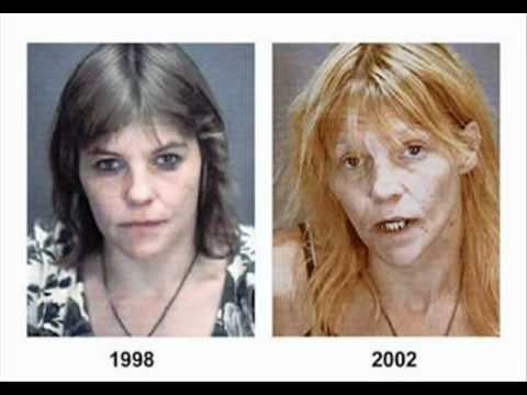 People Before And After Drugs