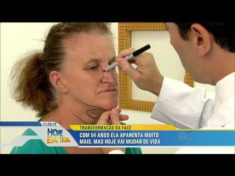 Transformação da face: Maria de Lourdes recupera a autoestima