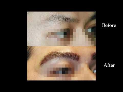 Eyebrow Transplant for Men Manila Philippines by Manzanares Hair Restoration Center