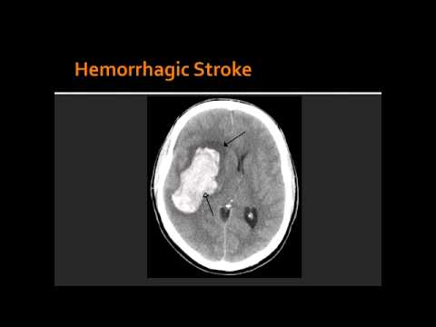 Atherosclerosis, Hemorrhagic Stroke, Ischemic Stroke ...