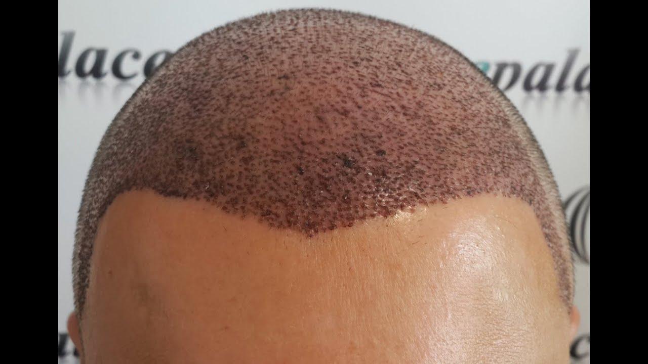 Lazerle Saç Ekimi: Saç Ekiminde Lazer